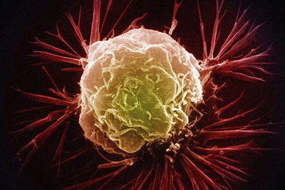 New breathalyzer may detect  several types of early cancer.