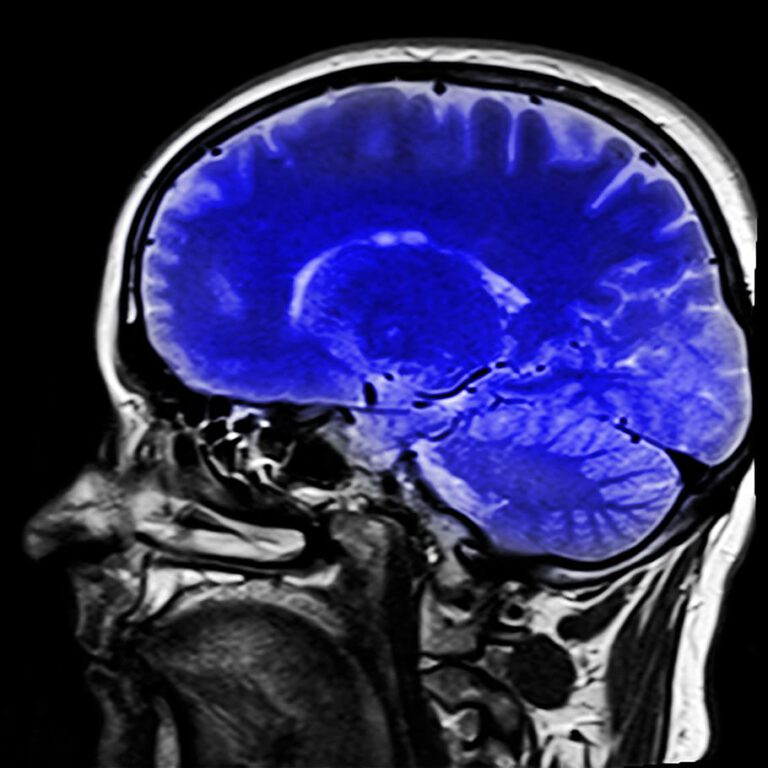 Wearable technology enters the realm of brain scans.