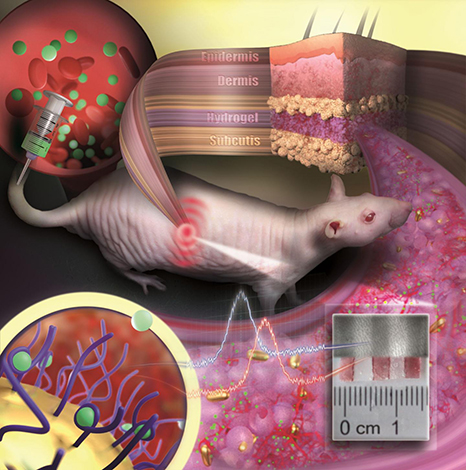 New nanoparticles may offer long-term monitoring from within the body.