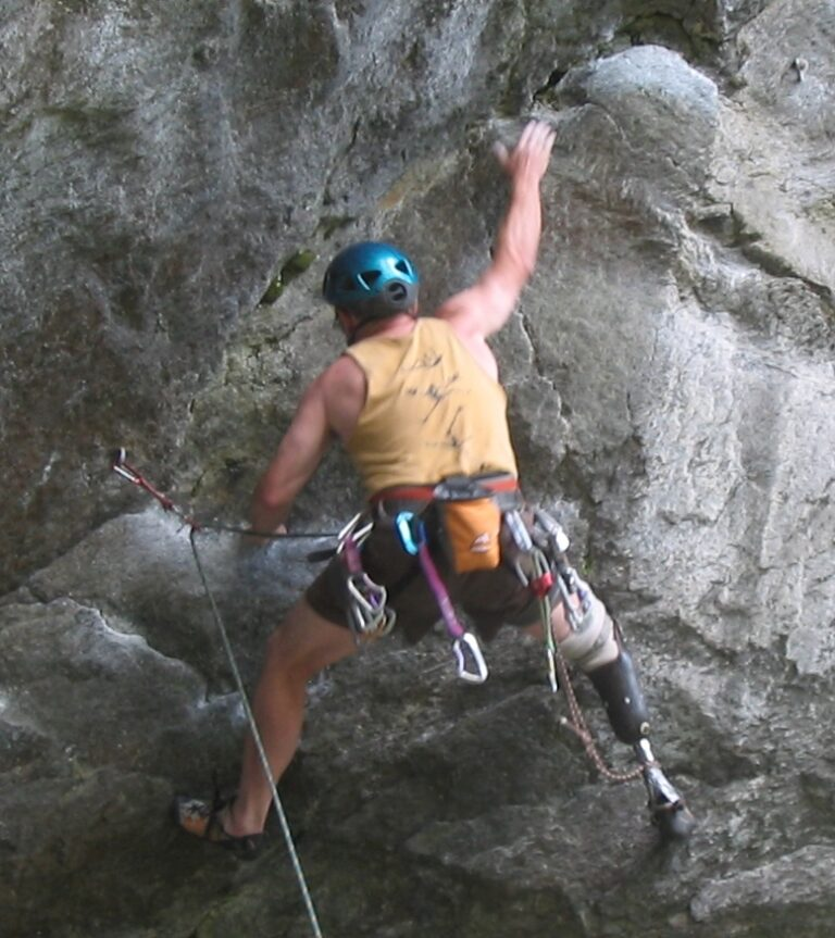 New tech for amputees – an exoskeleton!